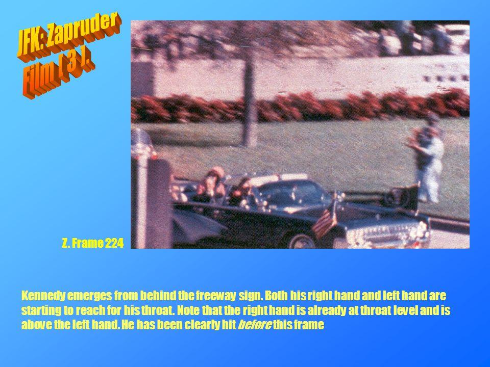 JFK: Zapruder Film [ 3 ]. Z. Frame 224